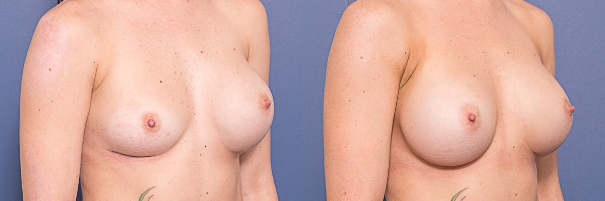 Dr Matthew Peters - Removal and Replacement - Before and After/Oblique