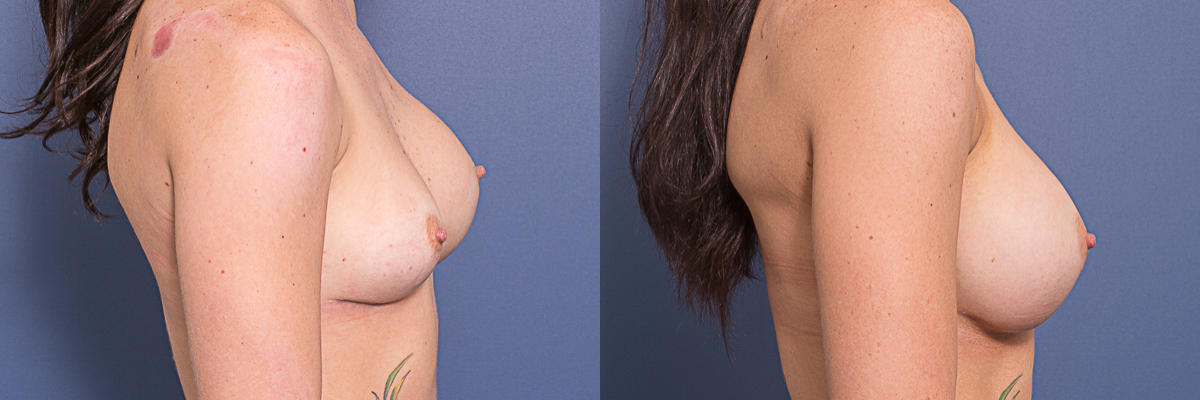 Dr Matthew Peters - Removal and Replacement - Before and After/Side