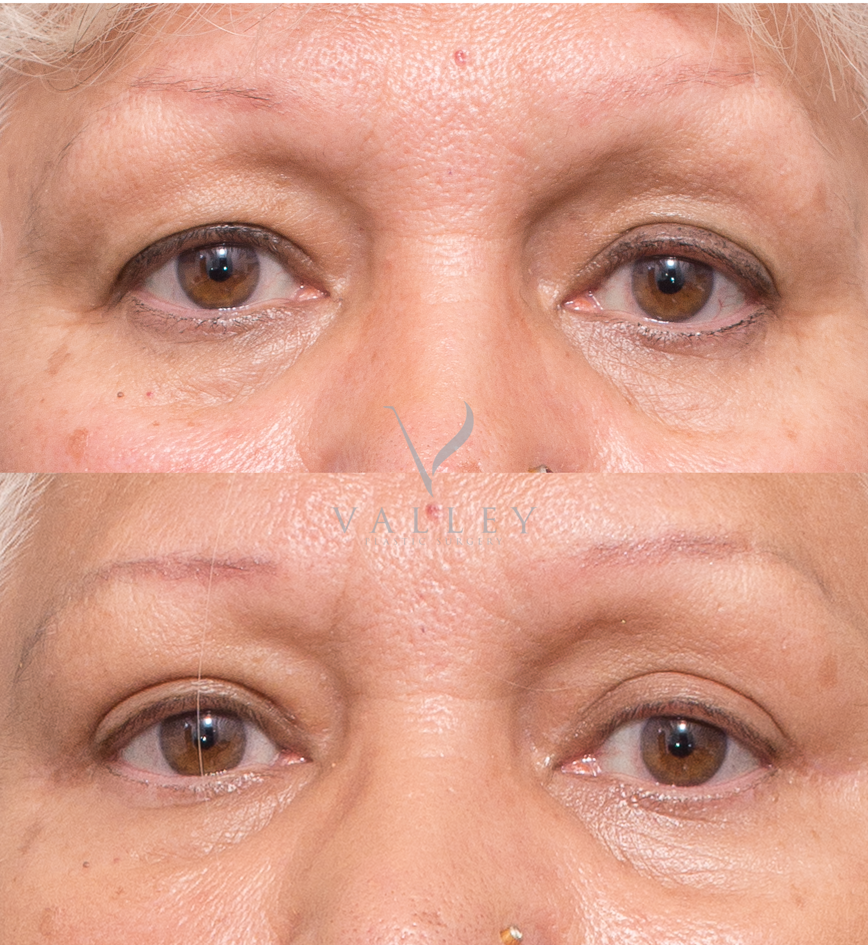 Eyelid Surgery | Valley Plastic Surgery | Plastic